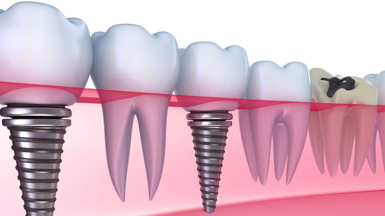 Hirurgija i implantologija