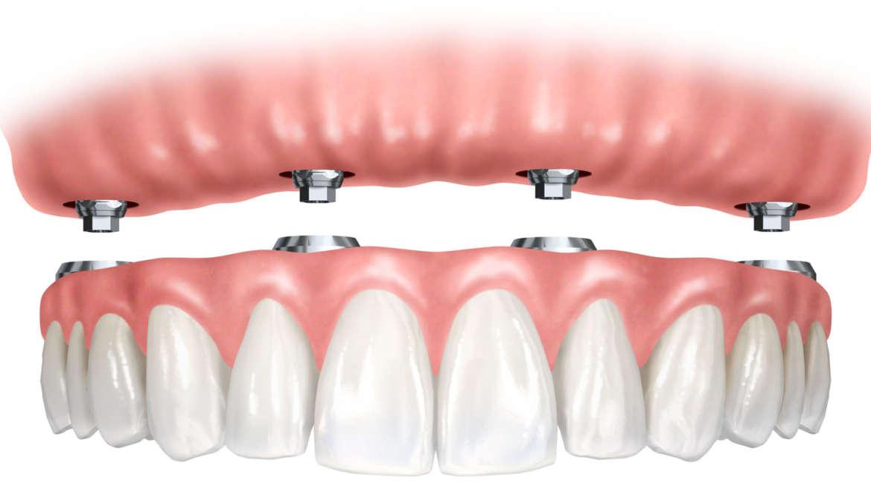 Protetska stomatologija